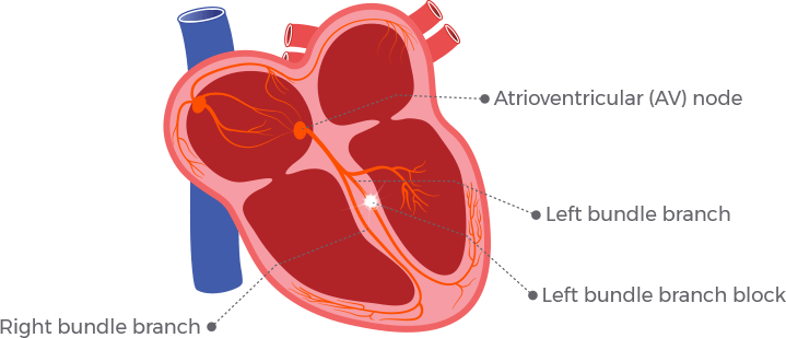 An illustration shows the right and left bundle branches of the heart and what happens with a blockage occurs. In this diagram of a bundle branch block, the electrical signal is blocked in the right, or left bundle pathway.