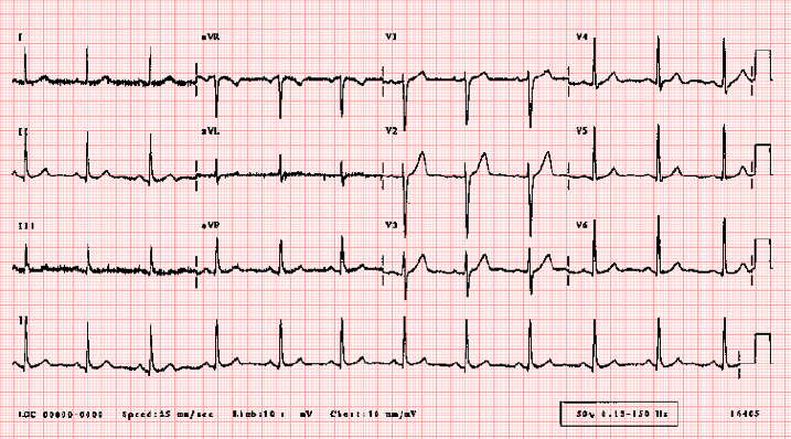 This image shows a normal ECG.