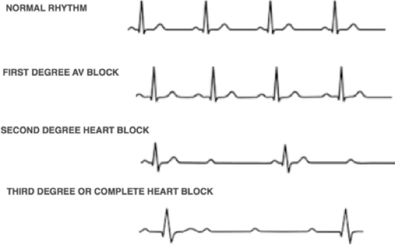 An illustration shows examples of a normal ECG pattern and examples of first-, second-, and third-degree heart block.