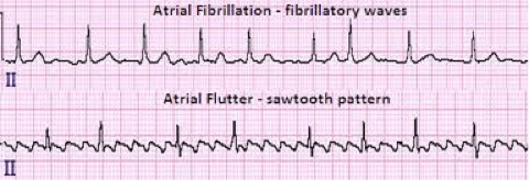 An image shows two ECGs. The upper one shows atrial fibrillation. The lower one shows atrial flutter.