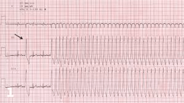 An image of an ECG showing a normal rhythm at the start with a single premature ventricular complexe and then the development of ventricular tachycardia.