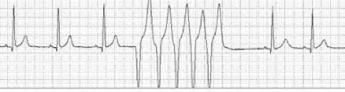 An image of an ECG showing a short run of ventricular tachycardia.