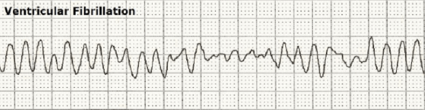 An image of an ECG showing ventricular fibrillation.
