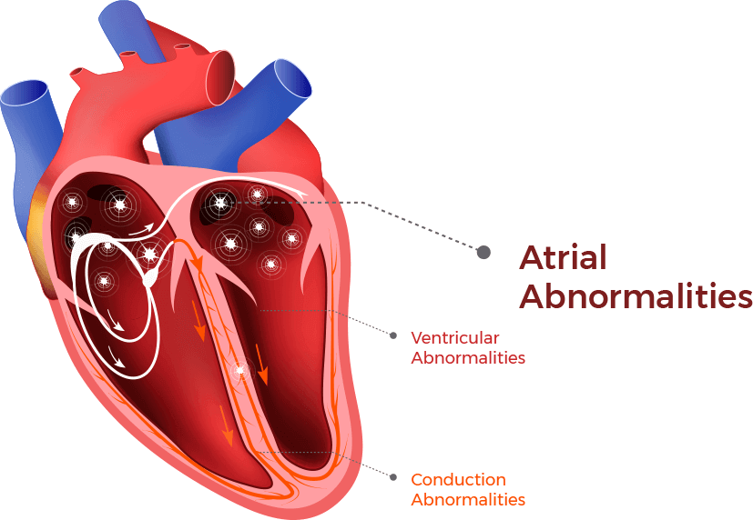 An illustration shows where atrial arrhythmias and abnormalities occur in the heart chamber.