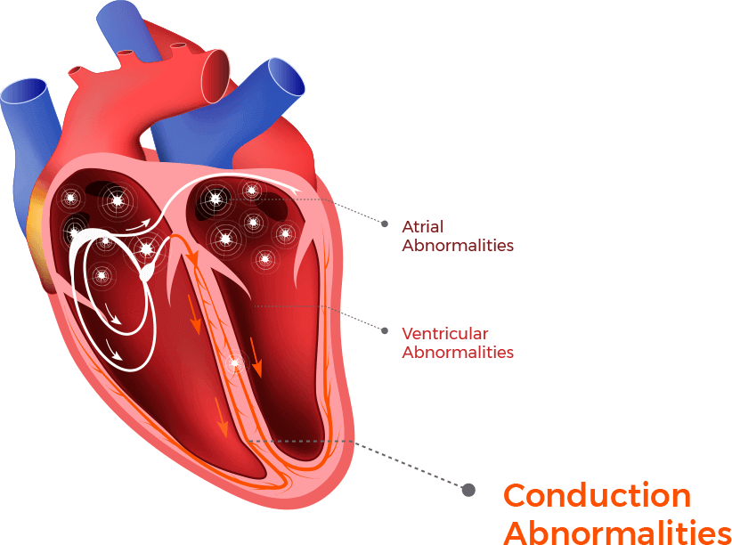 An illustration shows where conducation arrhythmias and abnormalities occur in the heart chamber.