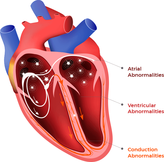 An illustration shows the three categories of heart arrhythmias that are most common in dilated cardiomyopathy: atrial, ventricular and conducation abnormalities.