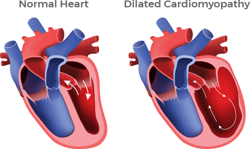 An illustration shows the difference between a normal heart and one with dilated cardiomyopathy.