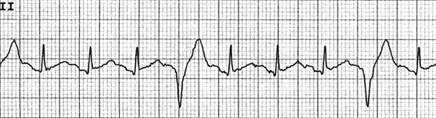 An image shows premature ventricular complexes on an ECG.