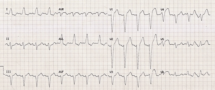 This image shows an ECG of someone with a left bundle branch block.